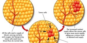 Cara Mengobati Tumor Jinak